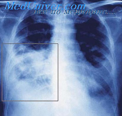 reaction paper on pneumonia Bacterial pneumonia (see the image below) is caused by a pathogenic infection of the lungs and may present as a primary disease process or as the final, fatal disorder primarily in an individual who is already debilitated bacterial pneumonia radiographic images in a patient with right upper lobe.