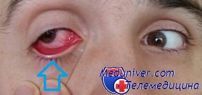 глаз при аденовирусной инфекции