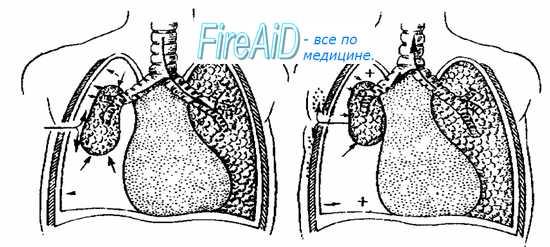 Травма грудной клетки. Повреждения груди. Пневмоторакс. Подкожная эмфизема. Открытый пневмоторакс.