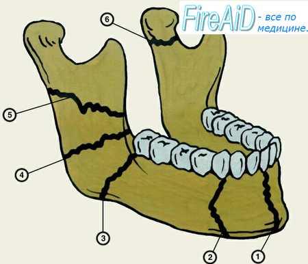 Перелом альвеолярного отростка нижней челюсти. Клиника ( признаки ...
