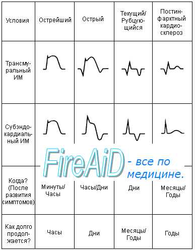 Течение и патогенез инфаркта миокарда на ЭКГ