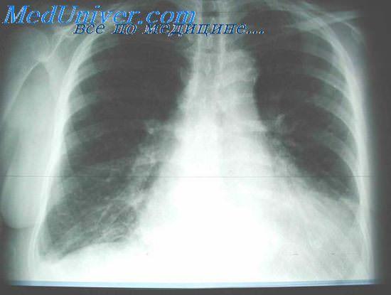 отёк лёгких фото