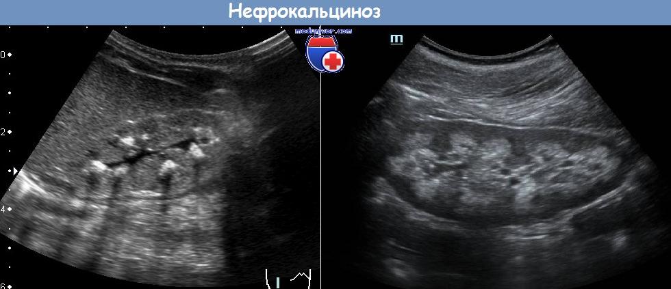 Амилоидоз почек. Медуллярный нефрокальциноз. Обструкция уретры на УЗИ.