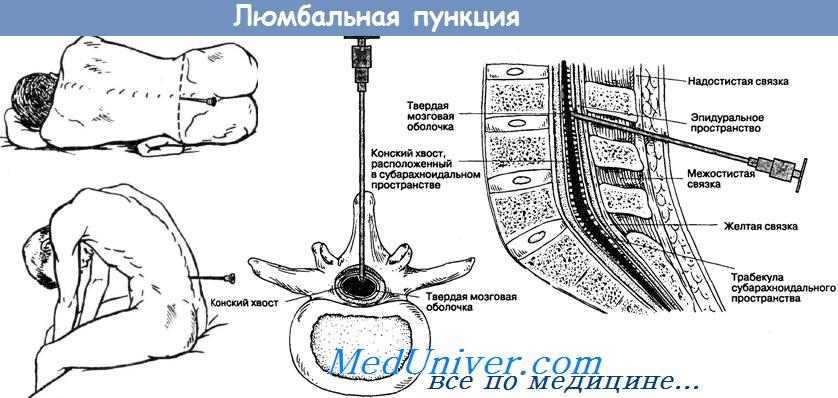 Люмбальная (спинномозговая) пункция