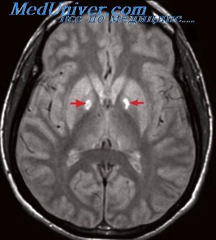 Транзиторная ишемическая атака: симптомы, лечение