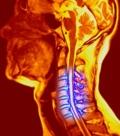 нейрохирургия позвоночника и спинного мозга