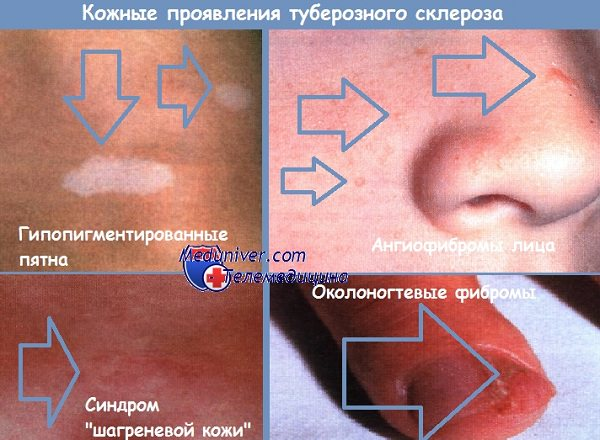 Туберозный склероз