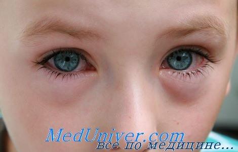 Доброкачественная внутричерепная гипертензия у детей. Диагностика ...