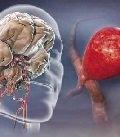 мальформации головного мозга