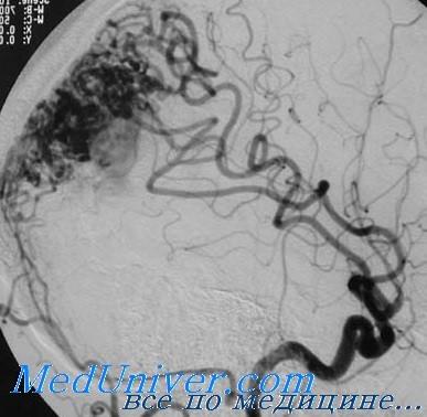 Внутричерепное кровоизлияние при артерио-венозной мальформации - ангиография