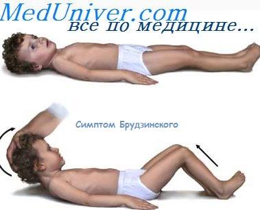 Осложнения неврологические при гриппе thumbnail
