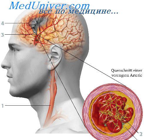 Чем расширить сосуды головного мозга