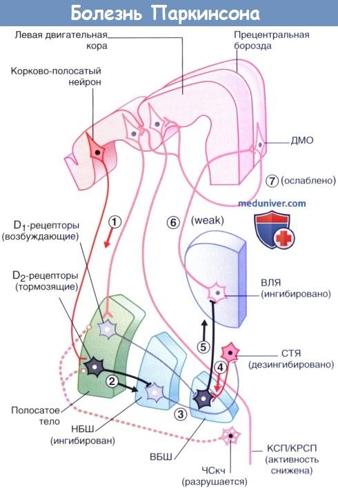 Синдром паркинсонизма тремор гипокинезия постуральная неустойчивость thumbnail