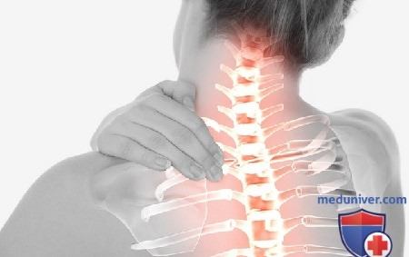 Острая боль в спине