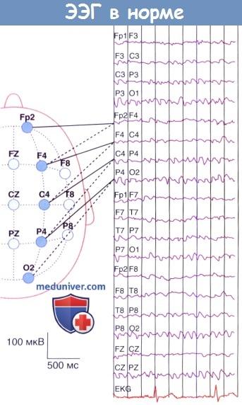 Электроэнцефалограмма в норме