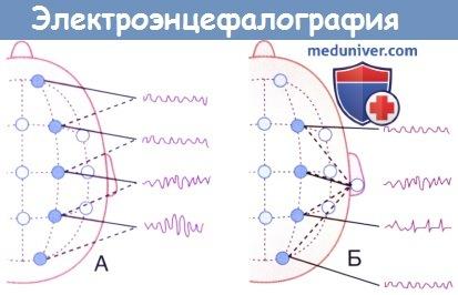 Регистрация электроэнцефалограммы (ЭЭГ)