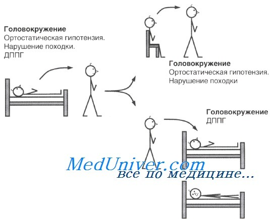 Длительное головокружение в вертикальном положении