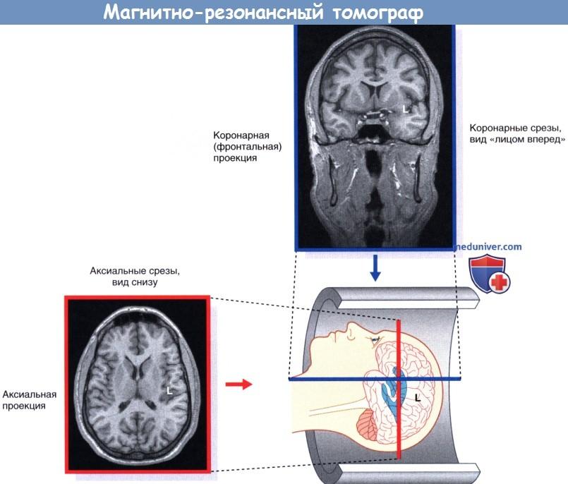 Ориентация магнитно-резонансных томограмм