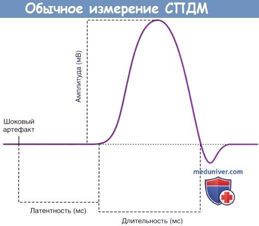 Обычное измерение суммарных потенциалов действия мышцы (СПДМ)