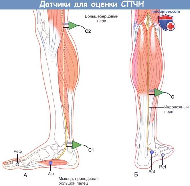 Датчики для оценки скорости проведения чувствительного нерва (СПЧН)