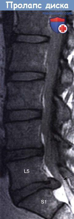 МРТ при пролапсе межпозвоночного диска