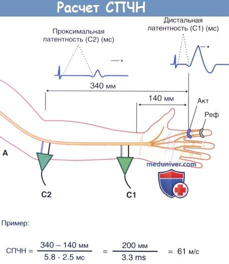 Расчет скорости проведения чувствительных нервов (СПЧН)