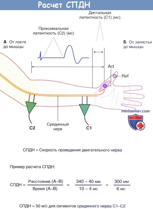 Расчет скорости проведения двигательного нерва (СПДН)