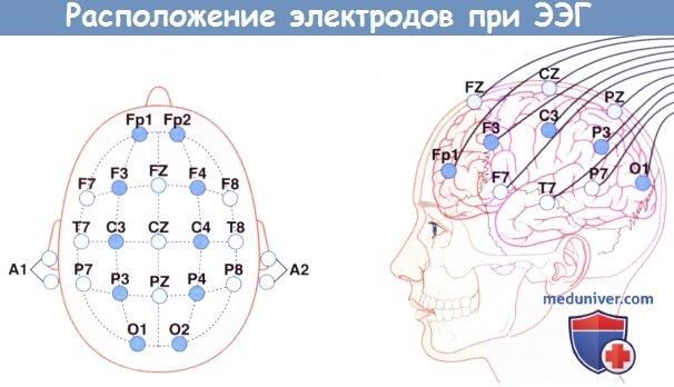 Расположение электродов при ЭЭГ