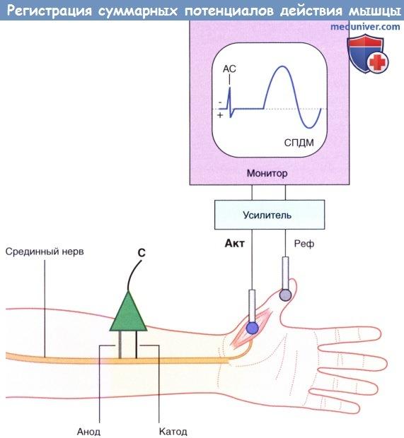 Регистрация суммарных потенциалов действия мышцы (СПДМ)
