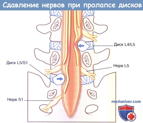 Сдавление нервов при пролапсе межпозвоночных дисков в поясничном отделе позвоночника