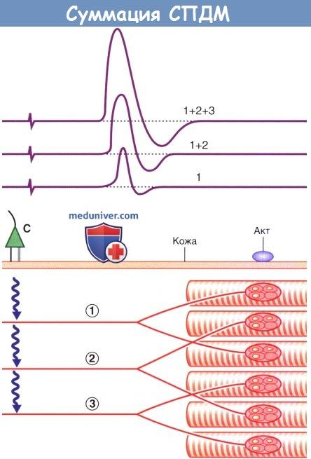 Суммация суммарных потенциалов действия мышцы (СПДМ)
