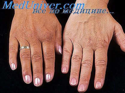 Кожа руки при надпочечниковой недостаточности (болезни Аддисона)