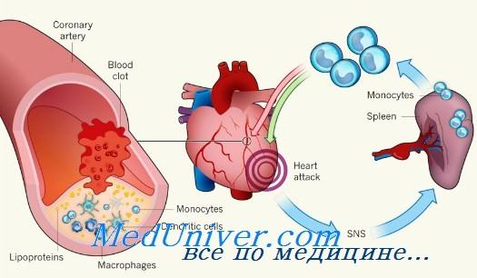 Пример инфаркта миокарда без тромбоза коронарных артерий ...