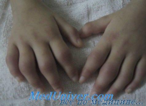 Анализы при ревматоидном артрите у ребенка thumbnail