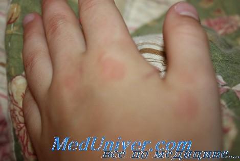 Лечение ювенильного ревматоидного артрита у детей. Прогноз