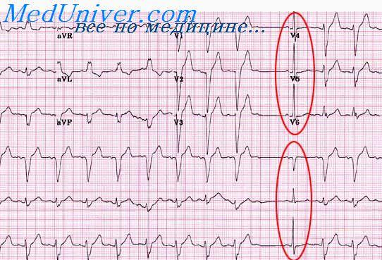 Перенесенный инфаркт и стенокардия на ЭКГ. Изменения зубца Т на ...