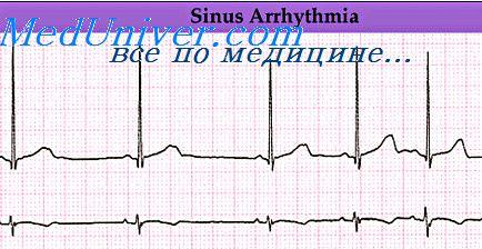 Сердечные аритмии. Нарушение ритма синусного узла