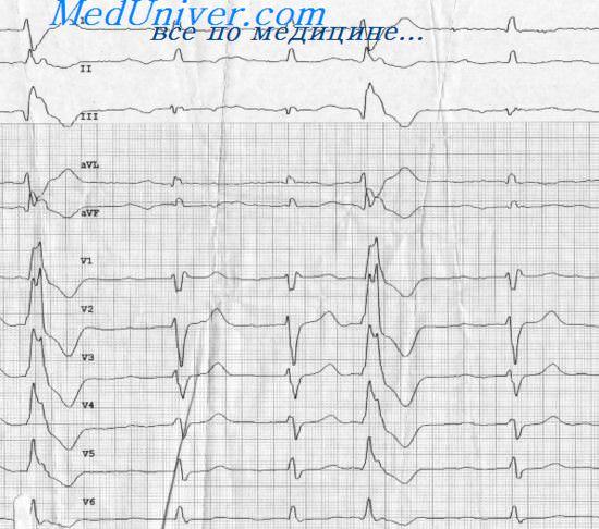 Поздние аритмии после инфаркта миокарда: желудочковая ...