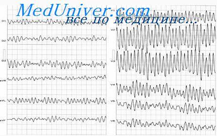 Электрокардиограмма при фибрилляции желудочков. Электрошоковая ...