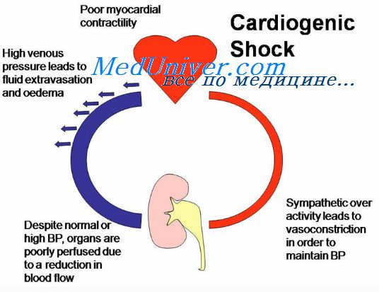 cardiogenic shock Anand swaminathan, md mph (@emswami) on the management of cardiogenic shock in the setting of an acute mi.