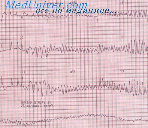 Тактика при идиопатической фибрилляции желудочков (ФЖ) сердца
