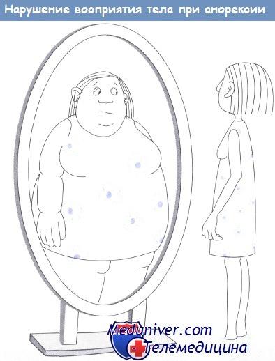 Нарушение восприятия тела при анорексии