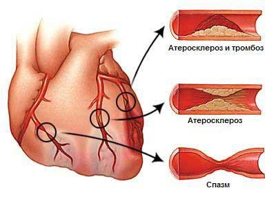 ИБС : Стенокардия : определение, диагностика, лечение стенокардии.