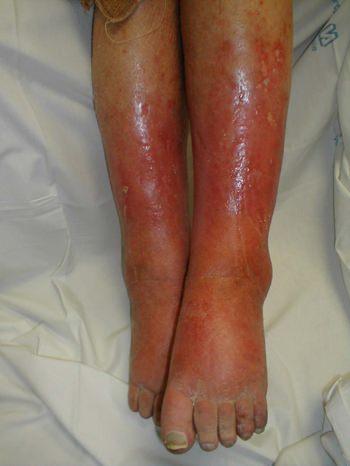 Отекают ноги внизу причины лечение. Причины и виды отечности ног