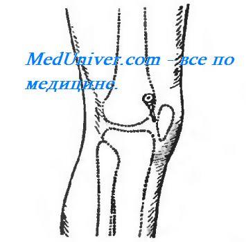Пункция из коленного сустав лечение солью суставов отзывы
