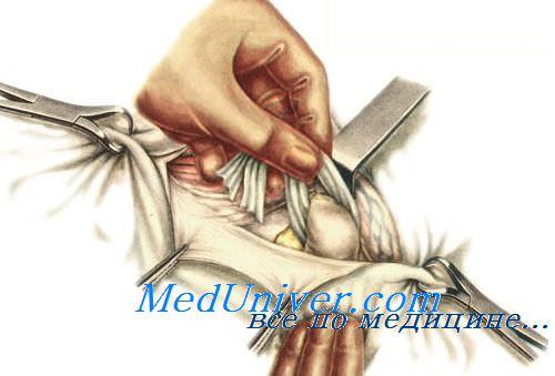 Операции при бедренной грыже. Принципы операций при бедренной грыже.