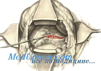 Операции на поджелудочной железе. Операции при панкреатите. Операции при опухолях поджелудочной железы.