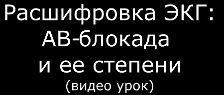 Видео АВ-блокада и ее степени на ЭКГ