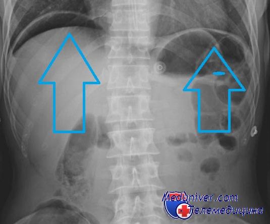 Рентгенография при перфорации полого органа - воздух под куполами диафрагмы