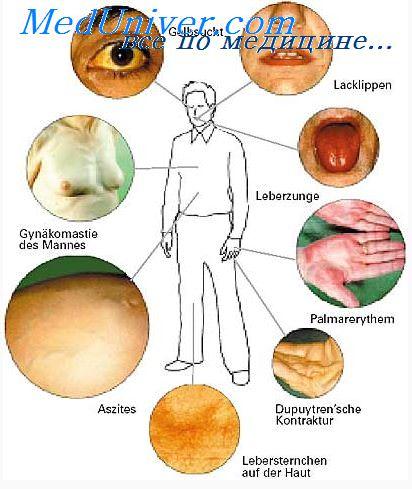 Хирургические заболевания печени. Нагноительные заболевания печени